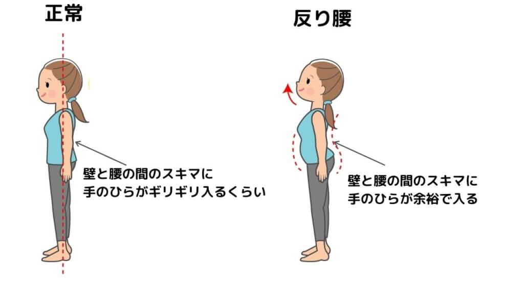 【骨盤前傾】ツラい腰痛!反り腰になっていませんか?