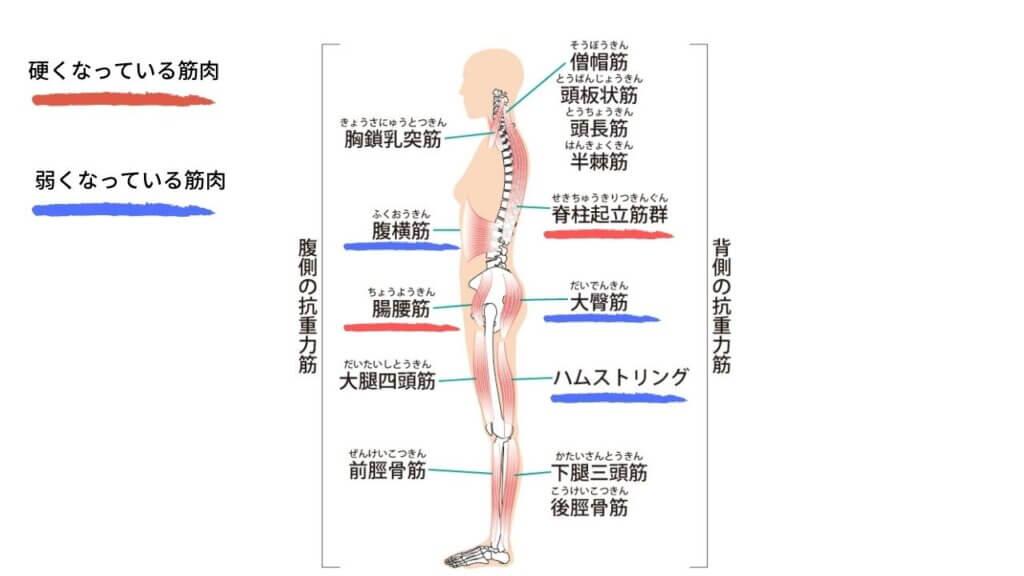 反り腰と坐骨神経痛-5