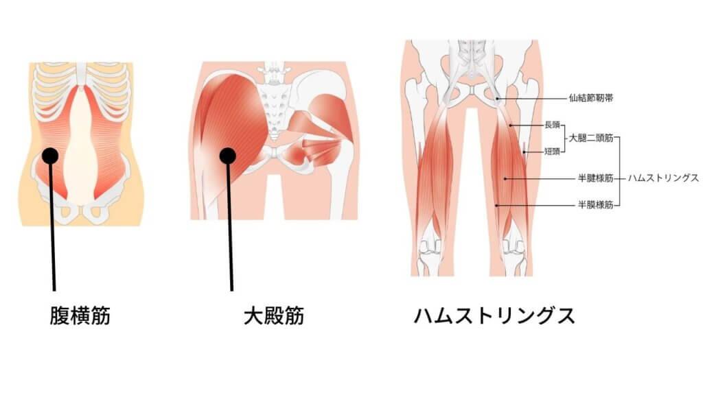 反り腰と坐骨神経痛-6
