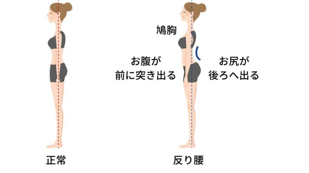 反り腰と坐骨神経痛-2