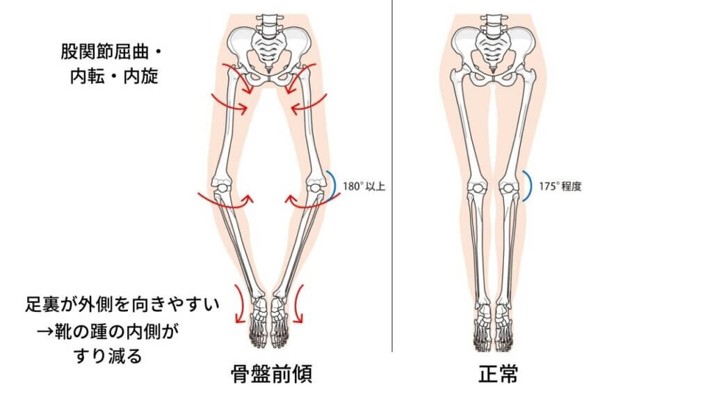 反り腰と坐骨神経痛-3